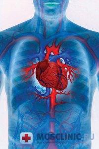 Как предупредить инфаркт миокарда?